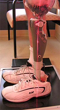 Prosthetic leg and foot